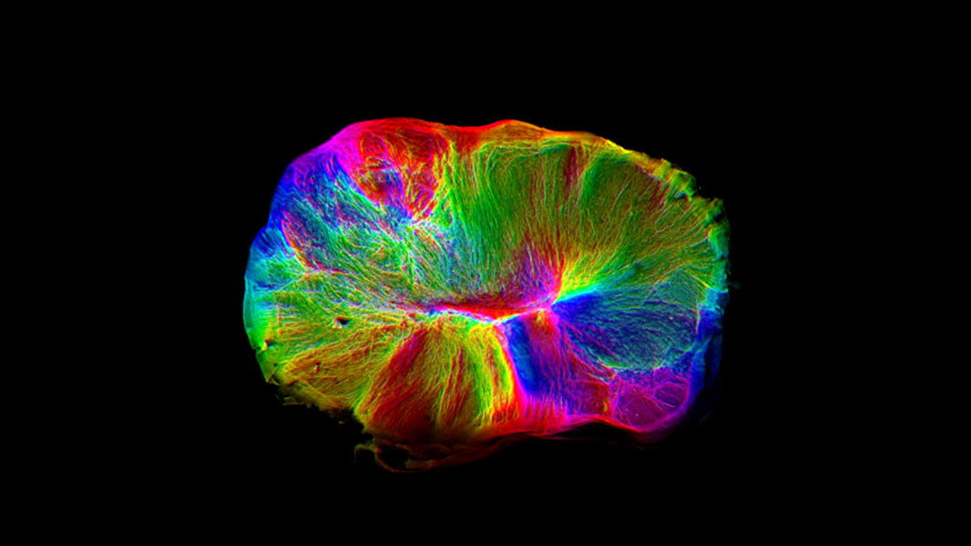 If Genes Dont Turn Off Brains Wiring >> A Lab Grown Brain Twitched An Isolated Muscle Here S Why