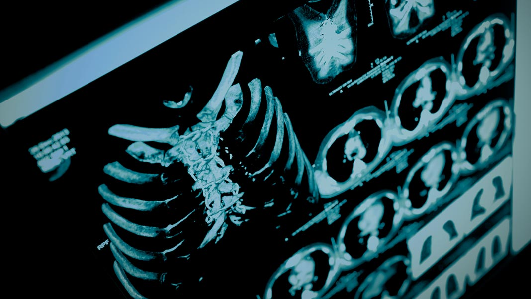 singularityhub.com - Shelly Fan - How AI Can Tap into the Collective Mind to Transform Healthcare