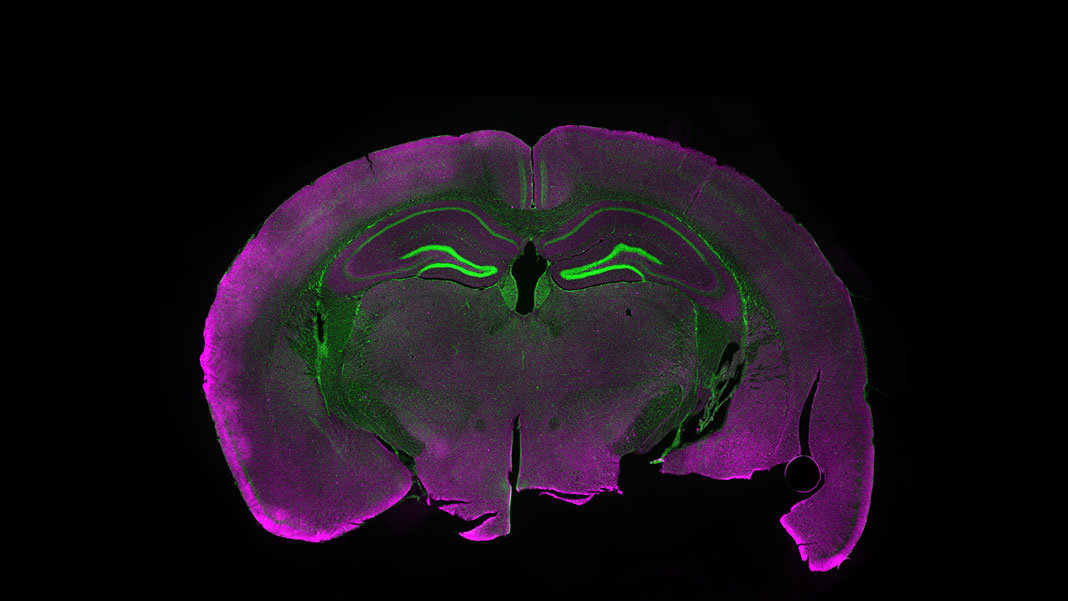 light microscopy of mouse brain with fluorescent labels neuroscience