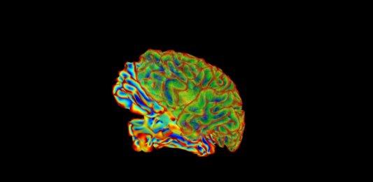 neuroscience multicolored brain imaging