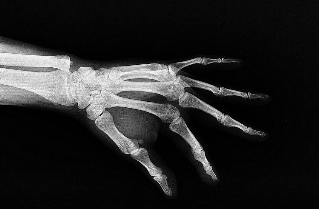 3d printed bones particle3d 3d printing implants