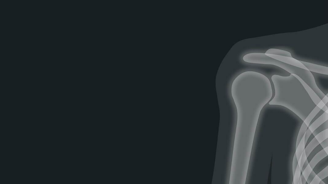 medical AI