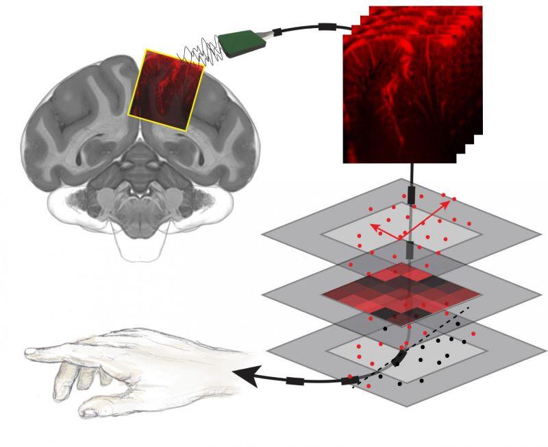 brain-machine interface ultrasound