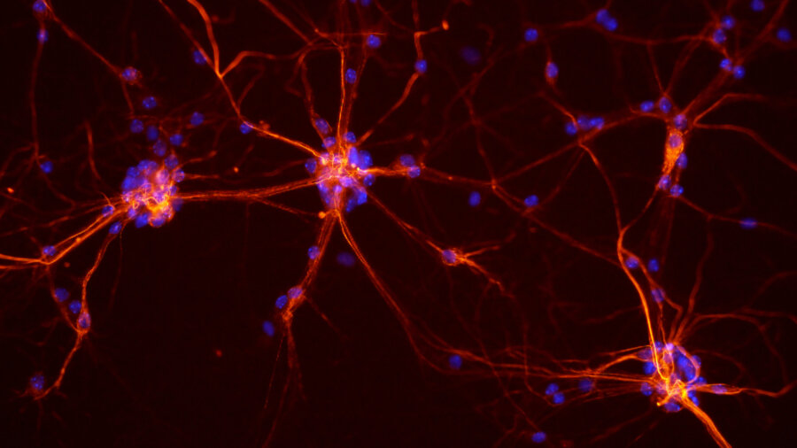 computer artificial intelligence neurons